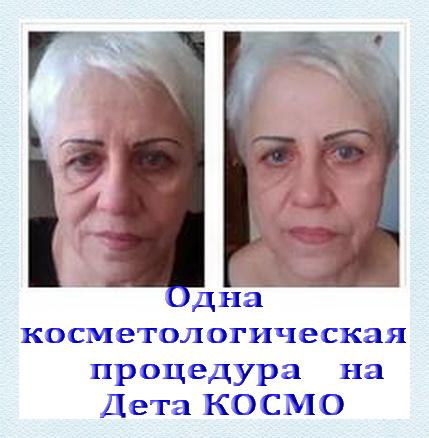 Прибор DeVita Cosmo - Ваше здоровье и красота. фото 2